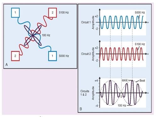 تحریک-الکتریکی-برای-کنترل-درد-3