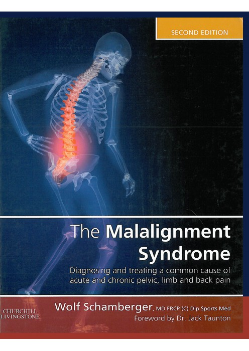 The Malalignment Syndrome Diagnosing and treating a common cause of acute and chronic pelvic, limb and back pain