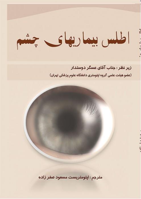 اطلس بیماریهای چشم