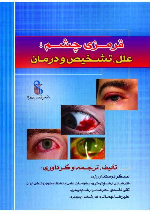 11- قرمزی چشم: علل ، تشخیص و درمان